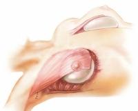 Частичное отсечение нижнего края прикрепления большой грудной мышцы к ребрам и грудине для создания достаточного пространства для расположения протеза