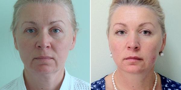 Фото до и после подтяжки Силуэт Лифт у Светланы Пшонкиной