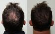 Имплантация волос Biofibre