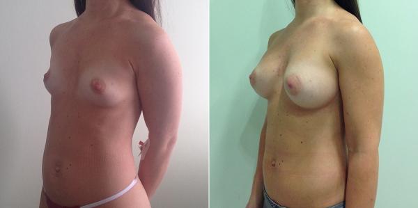 Фото пациентки до и после увеличения груди у Светланы Пшонкиной