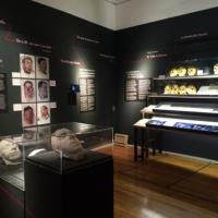 Эволюции челюстно-лицевой хирургии посвящена выставка «Face à Face: Regards sur la dé(re)figuration», которая сейчас проходит в Музее Первой мировой войны в Перонне.