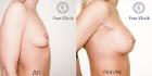 Frau Klinik. До и после увеличения груди
