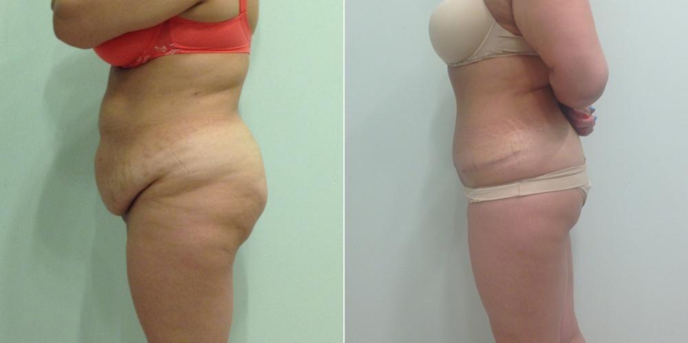 Пациентка до и после абдоминопластики у пластического хирурга Светланы Пшонкиной