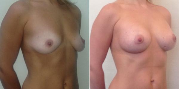 Фото до и после маммопластики у Светланы Пшонкиной