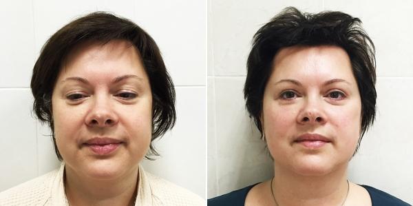 Фото пациентки до и после процедуры Визаж Лифт у Светланы Пшонкиной