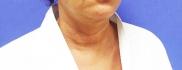 Фото пациентки до операции Декольте Визаж