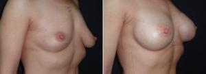 Бабаян, увеличение груди фото
