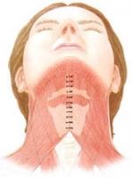 Методика подтяжки шеи