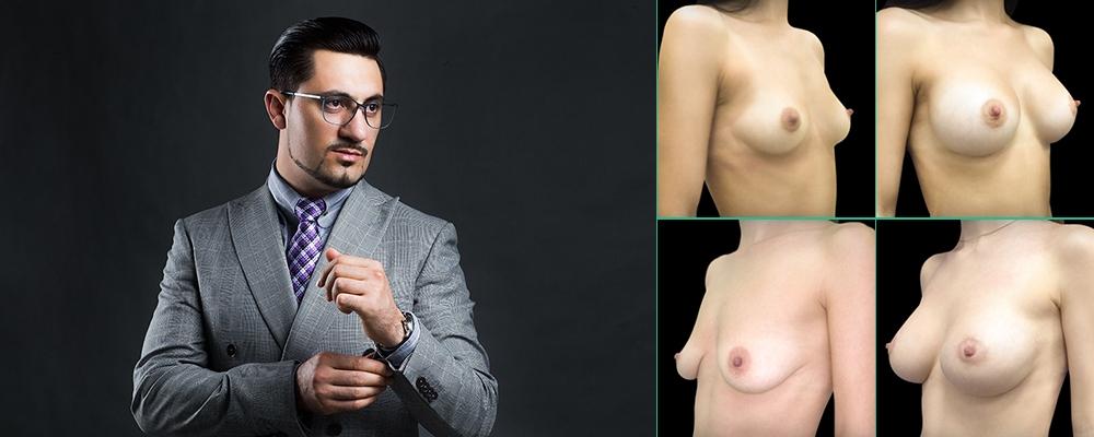 Вардан Хачатрян лучший хирург по груди