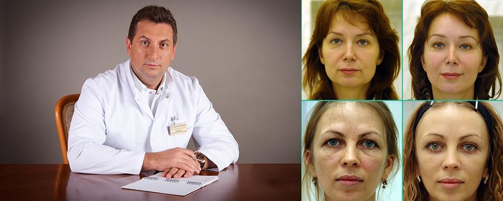Валерий Якимец лучший хирург по лицу