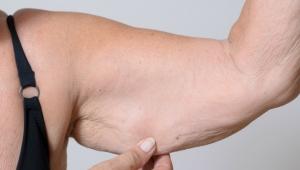 Обвисание рук