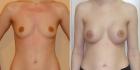 Фото до и после увеличения груди у Дмитрия Рябцева