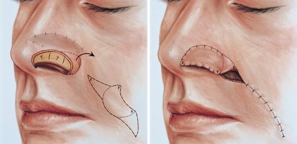 Пересадка кожи носа