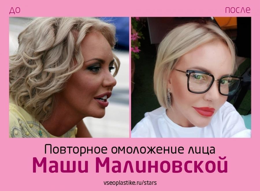 Маша Малиновская до и после подтяжки лица