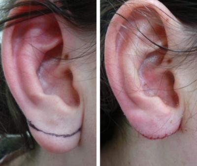 Пример пластики мочки уха с разрезом вдоль края