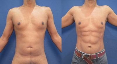 До и после липосакции у мужчин