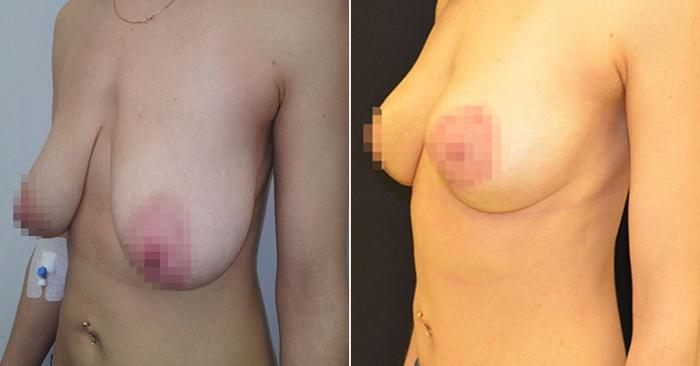 подтяжка груди после родов Ольга Ованесова