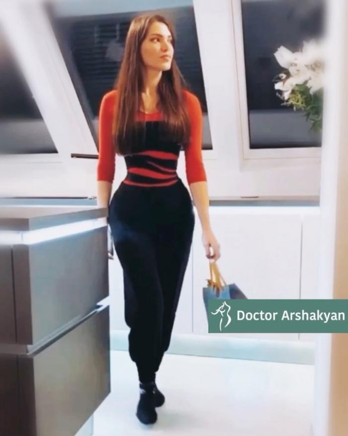 Пациентка доктора Аршакяна после хирургического формирования узкой талии без удаления рёбер