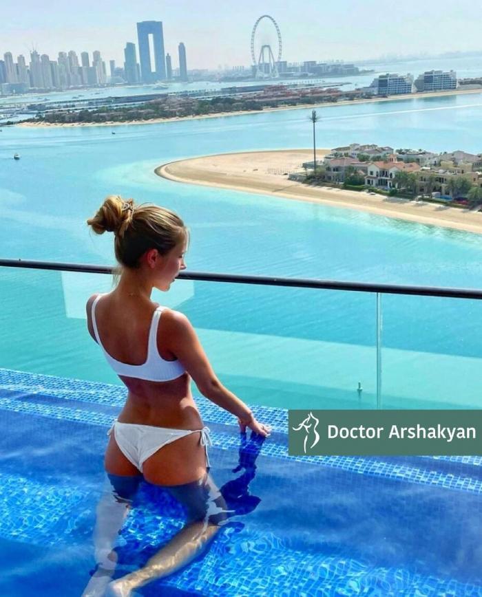 Пациентка доктора Вардана Аршакяна. Женщине выполнено хирургическое формирование узкой талии с сохранением рёбер