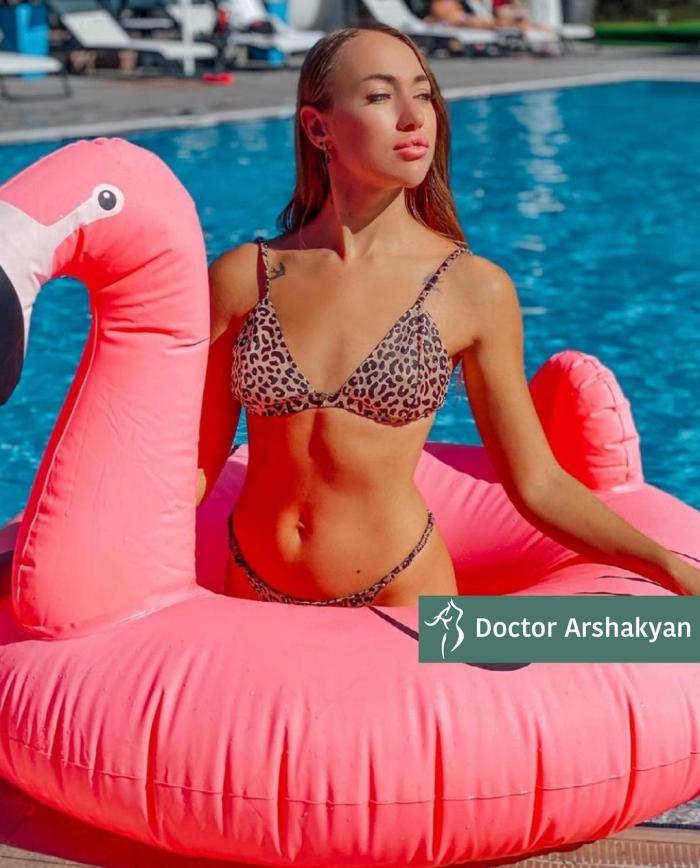 Пациентка доктора Вардана Аршакяна. Женщине выполнено хирургическое формирование узкой талии, с сохранением рёбер