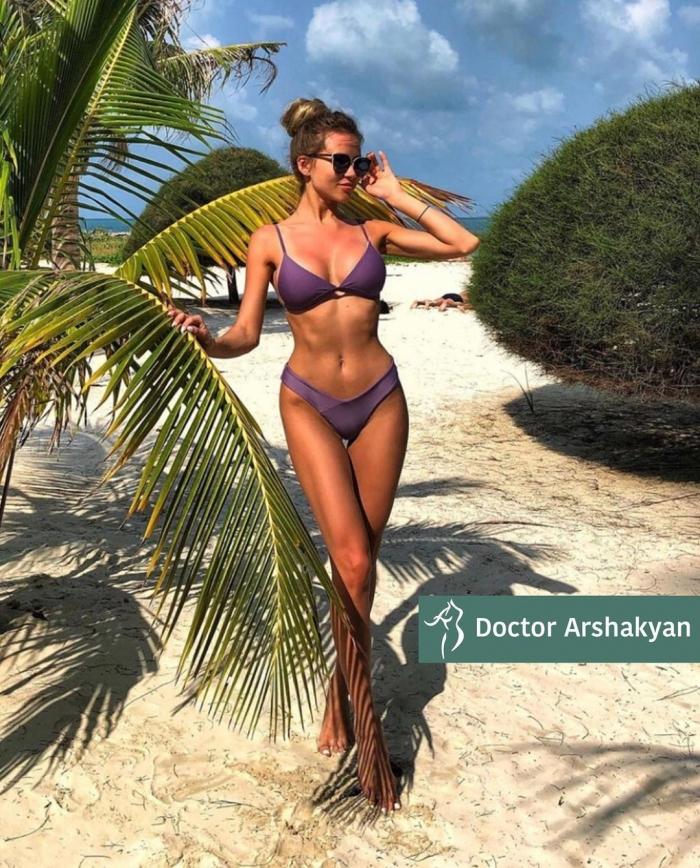 Пациентка доктора Вардана Аршакяна. Женщине выполнено хирургическое формирование узкой талии без удаления рёбер